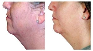 Microdermabrasion Pictures